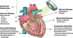 Fig 1. Radiation-induced cardiovascular disease.
