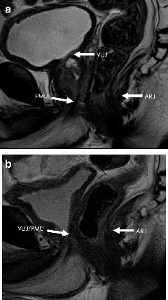 Fig. 2. The a) preoperative and b) postoperative T2W midsagittal MRI images showing the VUJ, PMU and ARJ anatomical landmarks.