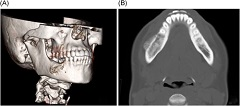 Fig 4. 3D reconstruction of the CT scan of the mandible showing only slight expansion of the lateral cortex of the madible (A), and axial view of the CT scan in bone window majority of the tumor being endosteal with a slight expansion of the lateral cortex (B).