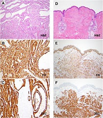 FH+/2SC+ immunophenotype: renal cell carcinoma; and cutaneous leiomyoma.