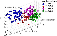 Figure 3. Clustering of 3D respiratory motion to different respiratory phases in a representative volunteer.