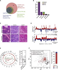 A Pharmacogenomic Landscape in Human Liver Cancers. Fig 1. Comparison between LIMORE and Primary Liver Cancers.