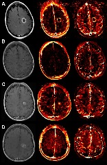 Fig. 1. DCE perfusion MR imaging in a 55-year-old woman with brain metastasis. T1-weighted, Ktrans, and Vp images are shown at multiple time points.