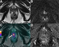 Figure 3. A 69-y-old patient with history of Gleason 7 PCa treated with high-intensity focus ultrasound therapy 1 year previously.