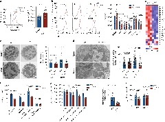 Fig. 4: CD36 deficiency stimulates apoptosis in intratumoral Treg cells.