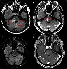 Figure 1. MRI imaging
