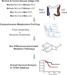 Figure 1: Schematic illustration of the metabolomics-driven analysis strategy for the discovery of sex-related differences in colon cancer metabolism.