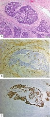 FIGURE 3. Case 5. A, Hematoxylin and eosin-stained section of case diagnosed as mixed endometrioid/serous carcinoma. Pictured here is the serous component showing focal papillary architecture, high nuclear grade, and prominent nucleoli. B, Loss of PTEN by immunohistochemistry. C, Aberrant p53 over-expression by immunohistochemistry.