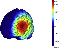 Fig 1. tDCS montage with modeled current density for left dlPFC stimulation.
