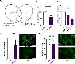 Figure 5: Downregulation of PCDH9 by miR-1260b in NFs promotes MFS cell invasion.