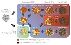 Fig 2. Various routes to leukemic transformation in MPNs.