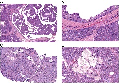 Fig. 2. Histologic features of resection specimen.