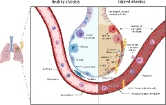Fig.1. Overview about radiation-induced acute and subacute alveolar changes.