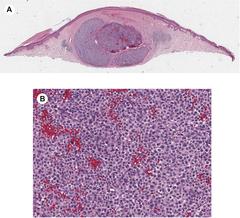 Fig. 1. Primary dermal melanoma, histologic features.
