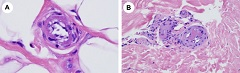 Fig. 6. Microvascular changes consistent with the sequelae of complement-mediated vascular injury localized within the fat.