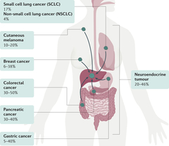 Fig. 2: Common primary cancers metastasizing to the liver.