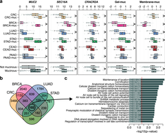Figure 1 Transcriptomic similarities across carcinomas with mucinous differentiation from different cancer types.