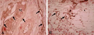 Fig. 2. Immunostaining for carcinoembryonic antigen-related cell adhesion molecule 1 (biliary glycoprotein; CEACAM1) in muscle-invasive bladder tumors.