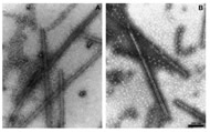 Fig 6. Electron microscopic evaluation of morphology of polymer formed in glutamate without GTP.