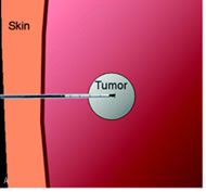 Fig 2a. Process for Radiofrequency Ablation (RFA). Transcutaneous insertion of the RFA needle electrode (usually via image guidance) into the tumor.
