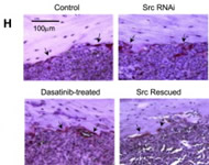 Fig 4h. Src Enhances Metastasis Survival and Outgrowth in Bone Marrow. Representative TRAP staining. Arrows indicate positive staining.