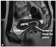 Fig 1a. Preoperative magnetic resonance image (MRI) in the sagittal plane demonstrating tumor in the anterior and right lateral walls of the uterine cervix.