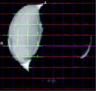 Fig 5b. 2D Lactate CSI from sagittal 5-mm thick slice using SS-SelMQC.