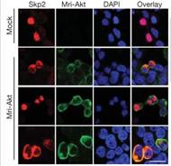 Fig 6f. 14-3-3-beta, but not 14-3-3-gamma, mediates Akt-dependent cytosolic localization of Skp2.