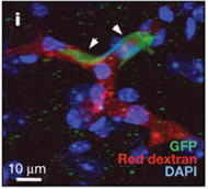 Fig 1.  Isolation and characterization of brain metastatic variants.  i, GPF+ MDA231-BrM2a cells (arrowheads) arrested in brain capillaries (red, rhodamine dextran) 24 h after intracardiac injection into mice.