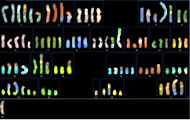Fig 2a. SKY picture of HCC1954 genome. (M) chromosome is too complicated to be assigned.