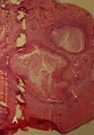 Fig 1. Histological appearance of the recurrent tumor. A: Mature teratoma showing squamous epithelium lined cysts (Hematoxylin and Eosin stain at 40◊).
