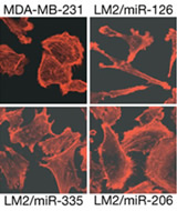 Fig 2c. Parental MDA-MB-231 cells and lung metastatic LM2 cells expressing miR-126, miR-335 or miR-206 were seeded onto glass slides. Cells were stained with the actin marker phalloidin and confocal images were obtained.
